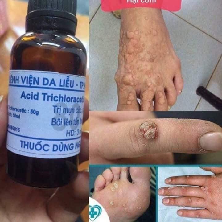 Sản phẩm đặc trị mụn cóc Acid Trichloracetic 80% của viện Da Liễu TP. Hồ Chí Minh